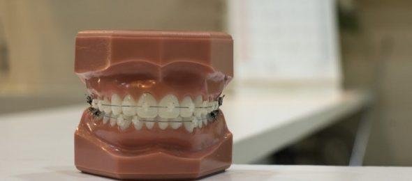 Blog Orthodontie verzekering - Blogs, tips en nieuws over verzekeringen